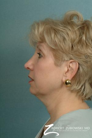 Neck Lift: Patient 2 - Before and After Image 2