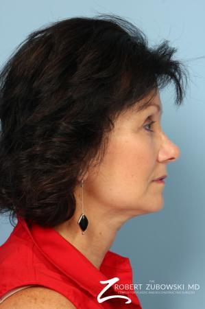 Blepharoplasty: Patient 25 - After Image 2
