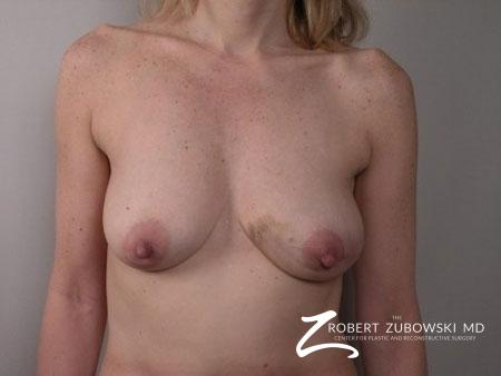 Breast Reconstruction: Patient 1 - Before Image 1