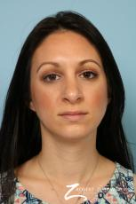 Rhinoplasty: Patient 25 - After Image