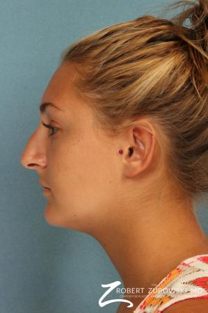 Rhinoplasty: Patient 18 - Before and After Image 2
