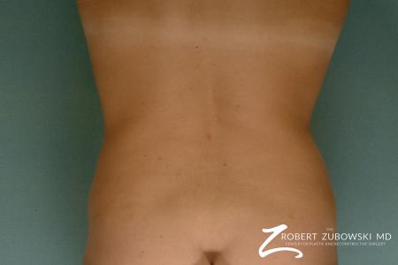 Liposuction: Patient 26 - After Image 3