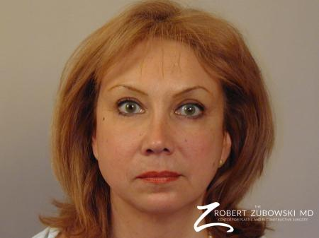 Blepharoplasty: Patient 19 - After Image