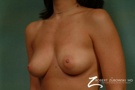 Breast Augmentation: Patient 29 - Before and After Image 2