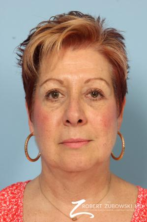 Blepharoplasty: Patient 13 - After Image