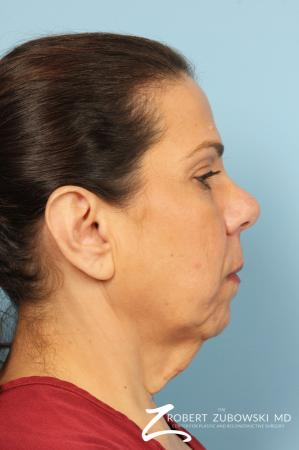 Neck Lift: Patient 9 - Before Image 2