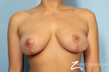 Breast Revision: Patient 2 - After Image 1
