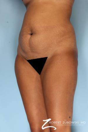 Liposuction: Patient 49 - Before Image 2