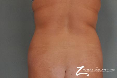 Liposuction: Patient 20 - Before Image