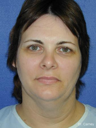 Virginia Beach Neck Lift 1269 - Before and After Image 3