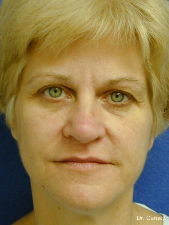 Virginia Beach Eyelid Lift 1344 - Before Image