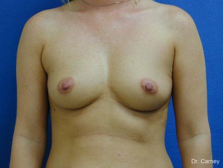 Virginia Beach Breast Augmentation 1192 - Before Image 1