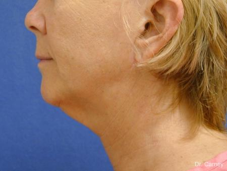 Virginia Beach Neck Lift 1264 - Before Image 1