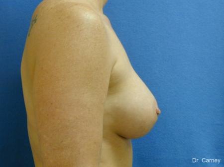 Virginia Beach Breast Augmentation 1214 -  After Image 3
