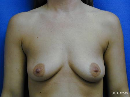 Virginia Beach Combo Procedures Breast 1096 - Before and After Image 3