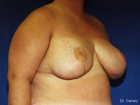 Virginia Beach Breast Reduction 1232 -  After Image 1