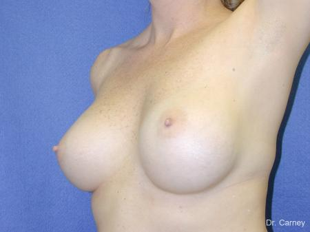 Virginia Beach Breast Augmentation 1084 - After Image