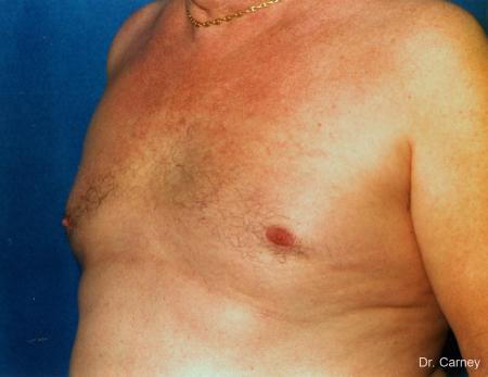 Virginia Beach Gynecomastia 1227 -  After Image 1