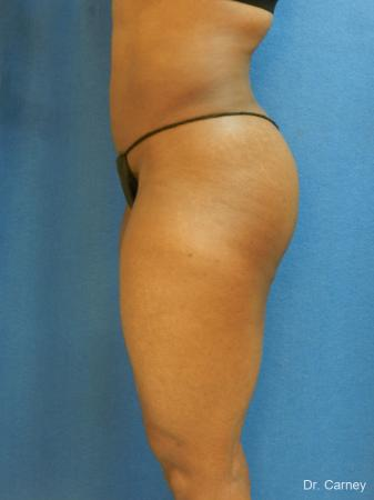 Brazilian Butt Lift: Patient 3 - After Image 2