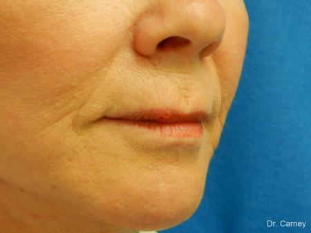 Virginia Beach Laser Skin Resurfacing Face 1263 -  After Image 3