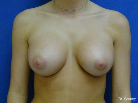 Virginia Beach Breast Augmentation 1089 -  After Image 3