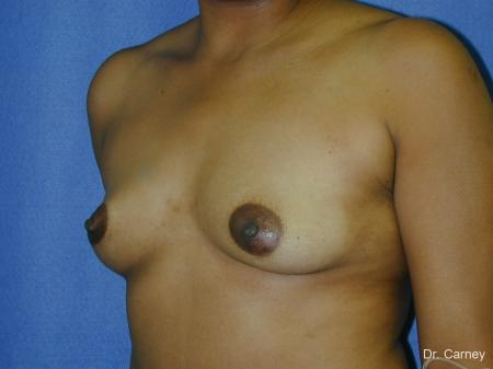 Virginia Beach Breast Augmentation 1091 - Before and After Image 3