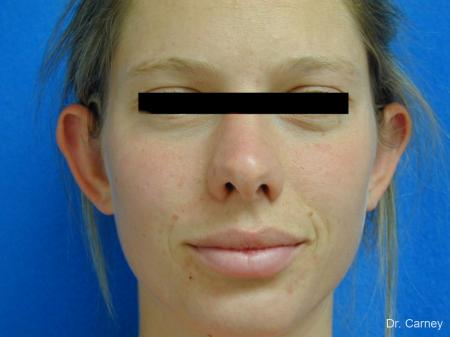 Virginia Beach Otoplasty Earlobe Repair 1223 - Before Image 3