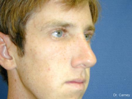 Virginia Beach Rhinoplasty 1219 -  After Image 3