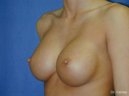 Virginia Beach Breast Augmentation 1097 -  After Image 2