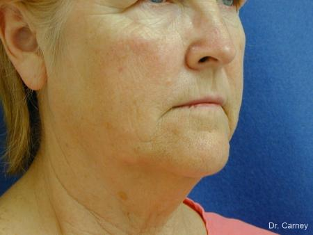 Virginia Beach Neck Lift 1207 - Before Image 1