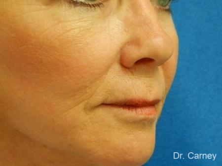 Virginia Beach Laser Skin Resurfacing - Face 1260 - After Image