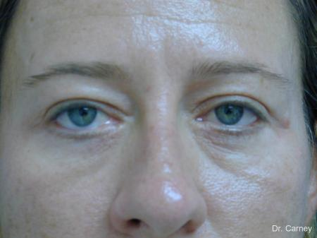 Virginia Beach Eyelid Lift 1209 - After Image