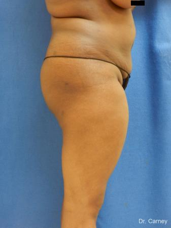 Brazilian Butt Lift: Patient 5 - After Image 5