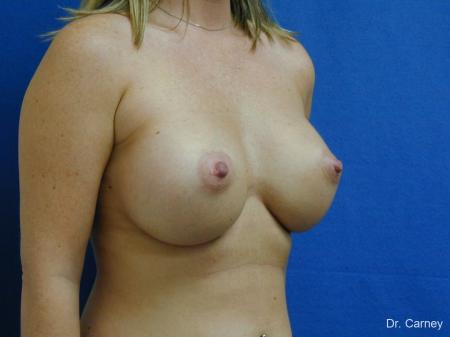Virginia Beach Breast Augmentation 1192 -  After Image 2