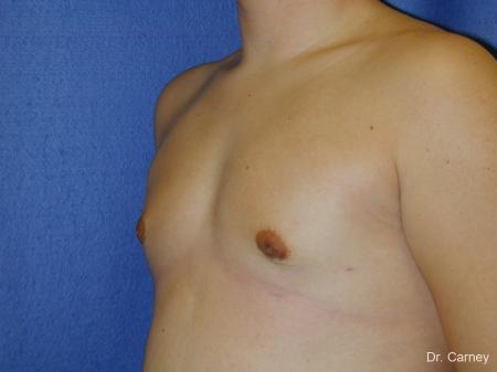 Virginia Beach Gynecomastia -  After Image 3