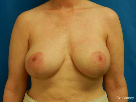 Virginia Beach Breast Lift 1185 -  After Image 1