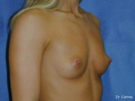 Virginia Beach Breast Augmentation 1193 - Before Image 2