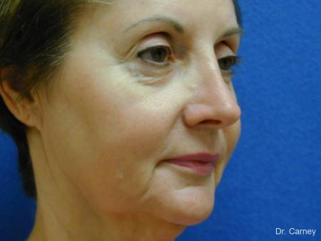 Virginia Beach Brow Lift 1216 - Before Image