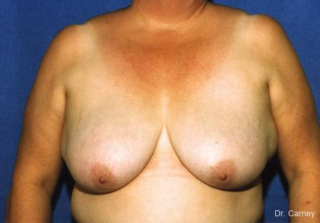 Virginia Beach Breast Lift 1186 - Before Image 1