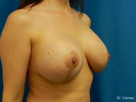Virginia Beach Combo Procedure Breast 1184 -  After Image 2