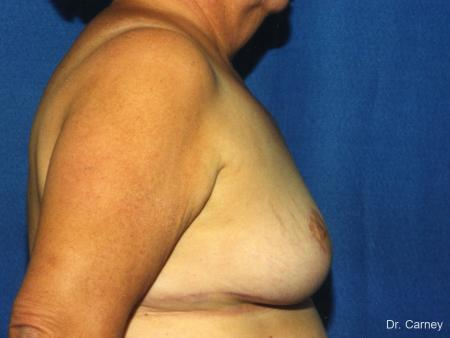 Virginia Beach Breast Reduction 1234 -  After Image 2