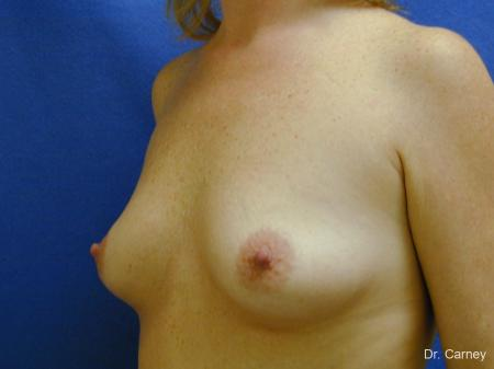 Virginia Beach Combo Procedures Breast 1093 - Before Image