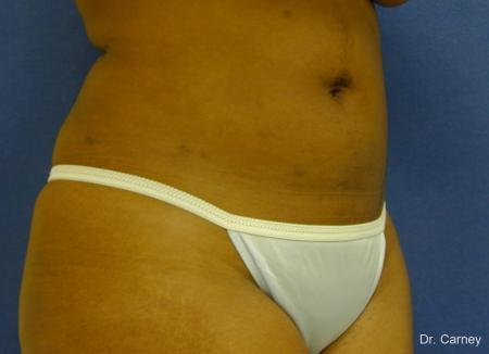 Virginia Beach Liposuction 1283 -  After Image 4