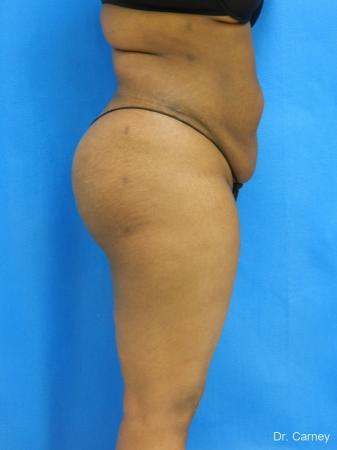 Brazilian Butt Lift: Patient 4 - After Image 5