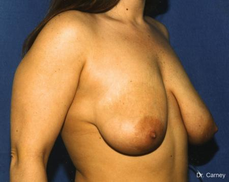 Virginia Beach Breast Lift 1187 - Before Image