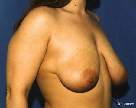 Virginia Beach Breast Lift 1187 - Before Image 1