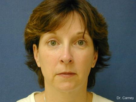 Virginia Beach Brow Lift 1217 - Before Image