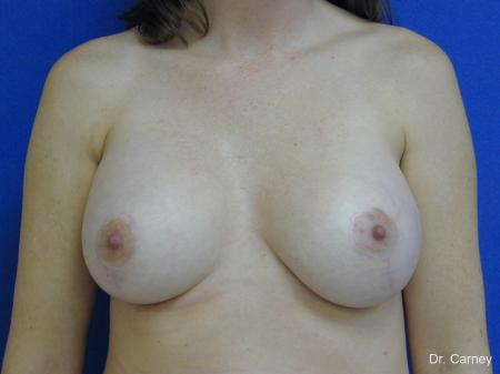 Virginia Beach Combo Procedures Breast 1095 - After Image