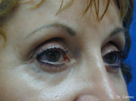 Virginia Beach Brow Lift 1216 -  After Image 2