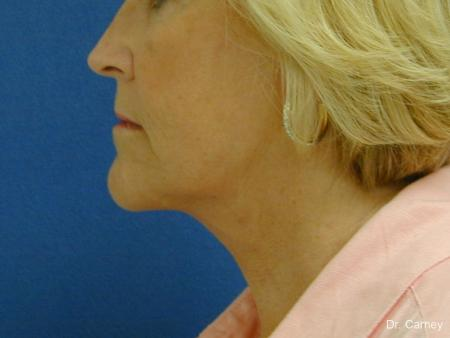 Virginia Beach Neck Lift 1207 -  After Image 3